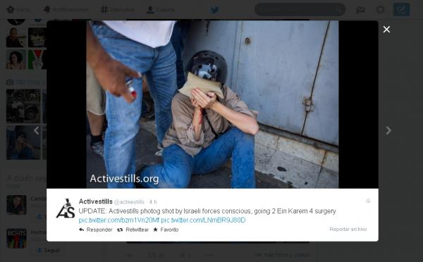 Fotógrafa de Active Stills herida en la cara.